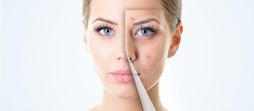 Curs de microdermoabraziune facială